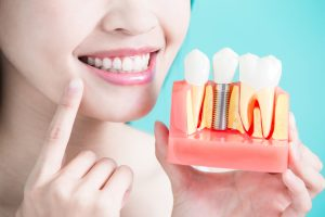 Dental Implants in Vancouver, BC - Fraser Family Dental
